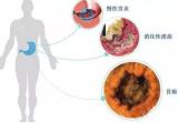 全国7亿人感染的这种病菌,最新证明可导致心肌梗死!一人感染,全家中招