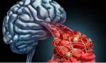 脑血栓来临前,会发出这6种暗号,抓住一个就能救命!