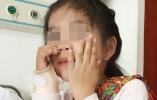 6岁女孩患有罕见先天疾病,右手摸不到自己脸